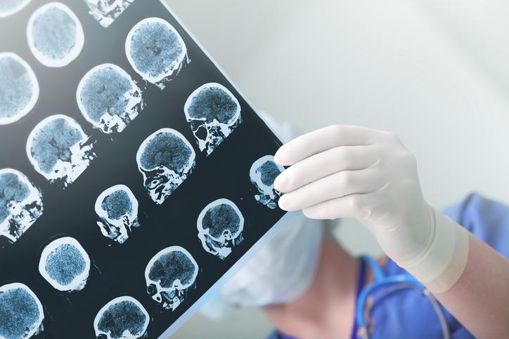 Alzheimer's testing